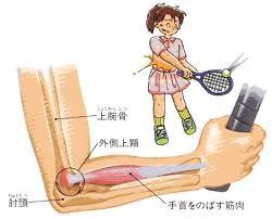 テニス肘 (上腕骨外側上顆炎)