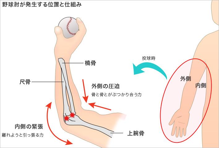 野球肘(離断性骨軟骨炎)